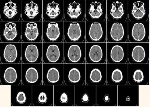 Image of brain scans to illustrate how to work with us. Tecnical translations for life science industries