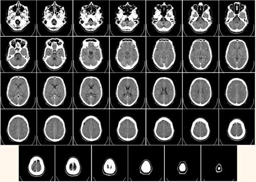 Image of brain scans. Translate medical documents
